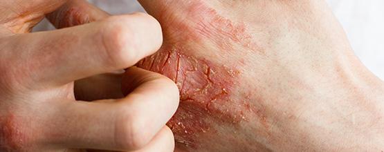 Eczéma (dermatite atopique) : Faits et mythes