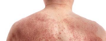 Tableau des médicaments d'ordonnance contre l'eczéma (dermatite atopique)